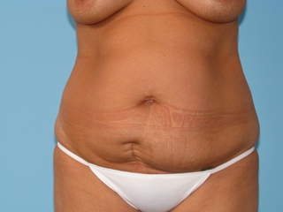 huntsville breast reconstruction al in surgeons